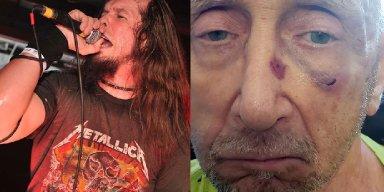 Ex Anthrax Singer Arrested for Assaulting Two Elderly Men